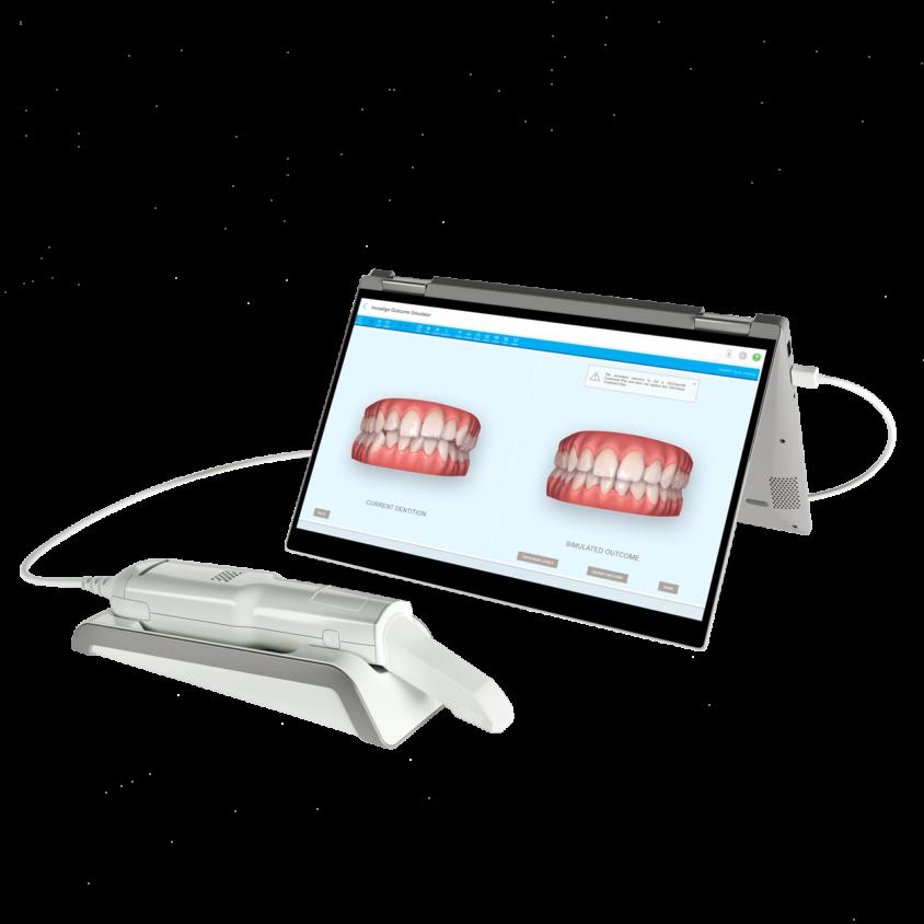 Super snel resultaat met de Invisalign behandeling van Orthodontiepraktijk Billet